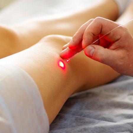 agopuntura e laseragopuntura